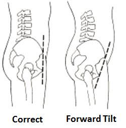 posture-problems-2