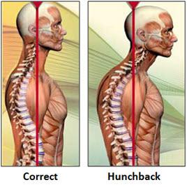 posture-problems-3
